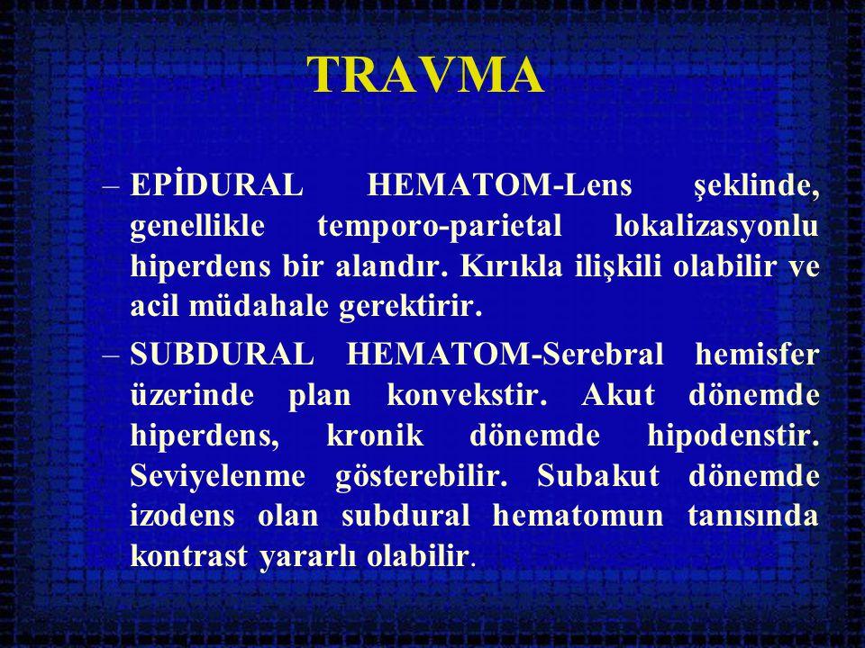 TRAVMA –EPİDURAL HEMATOM-Lens şeklinde, genellikle temporo-parietal lokalizasyonlu hiperdens bir alandır. Kırıkla ilişkili olabilir ve acil müdahale g