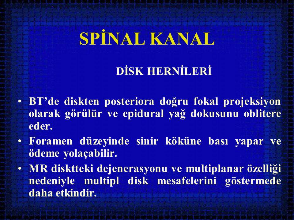 SPİNAL KANAL DİSK HERNİLERİ •BT'de diskten posteriora doğru fokal projeksiyon olarak görülür ve epidural yağ dokusunu oblitere eder. •Foramen düzeyind