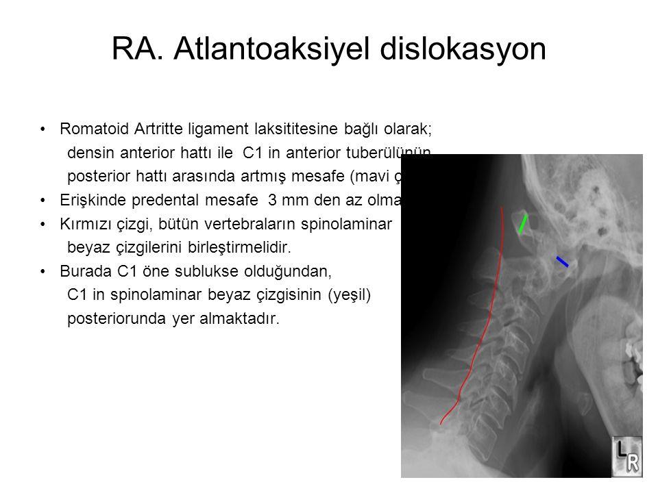 RA. Atlantoaksiyel dislokasyon •Romatoid Artritte ligament laksititesine bağlı olarak; densin anterior hattı ile C1 in anterior tuberülünün posterior