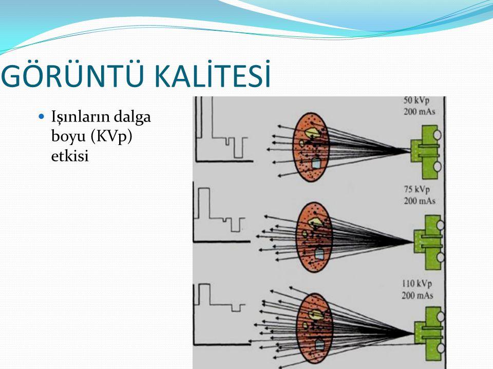GÖRÜNTÜ KALİTESİ 60 kV - 50 mAs 70 kV - 50 mAs 80 kV - 50 mAs  Işınların dalga boyu (KVp) etkisi