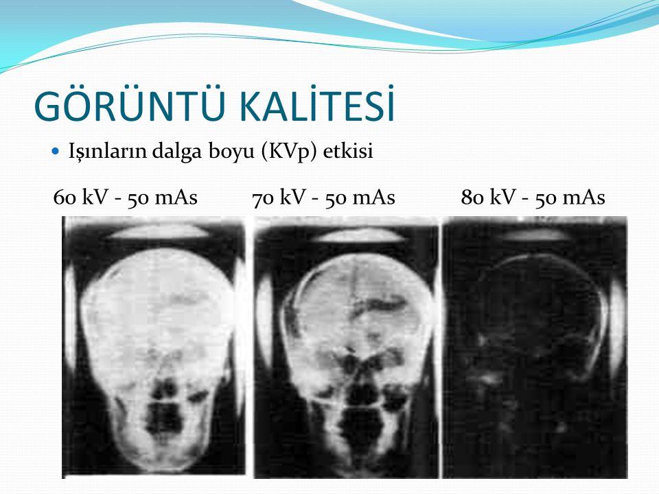 GÖRÜNTÜ KALİTESİ  Işın demetinin yoğunluğu (mAs) etkisi