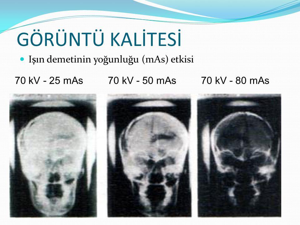 GÖRÜNTÜ KALİTESİ  Işın demetinin yoğunluğu (mAs) etkisi 70 kV - 25 mAs 70 kV - 50 mAs 70 kV - 80 mAs
