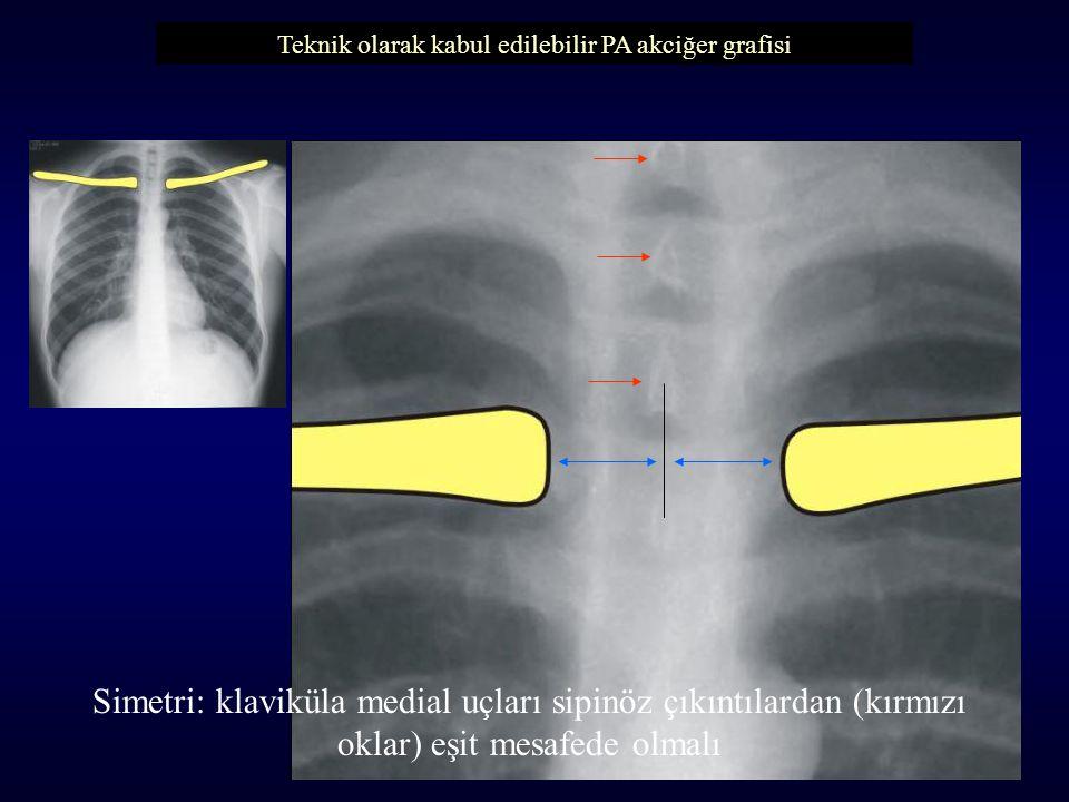 Simetri: klaviküla medial uçları sipinöz çıkıntılardan (kırmızı oklar) eşit mesafede olmalı