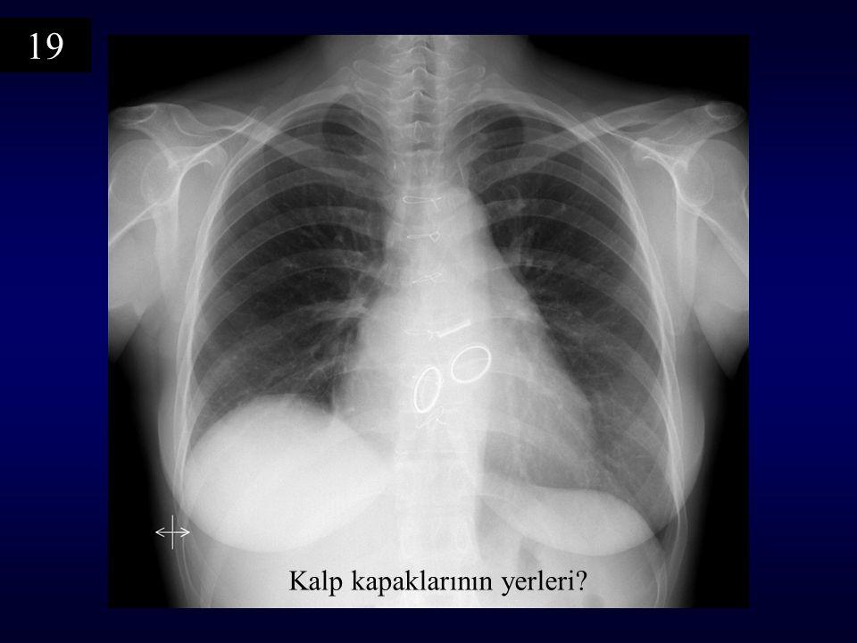 Kalp kapaklarının yerleri? 19