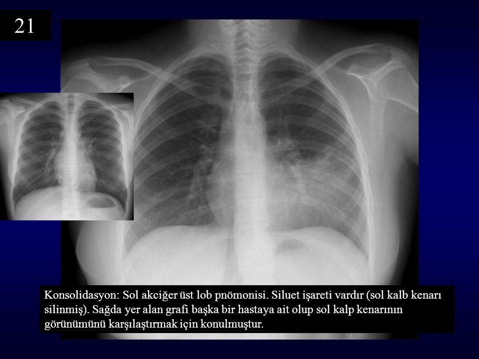 Konsolidasyon: Sol akciğer üst lob pnömonisi. Siluet işareti vardır (sol kalb kenarı silinmiş). Sağda yer alan grafi başka bir hastaya ait olup sol ka