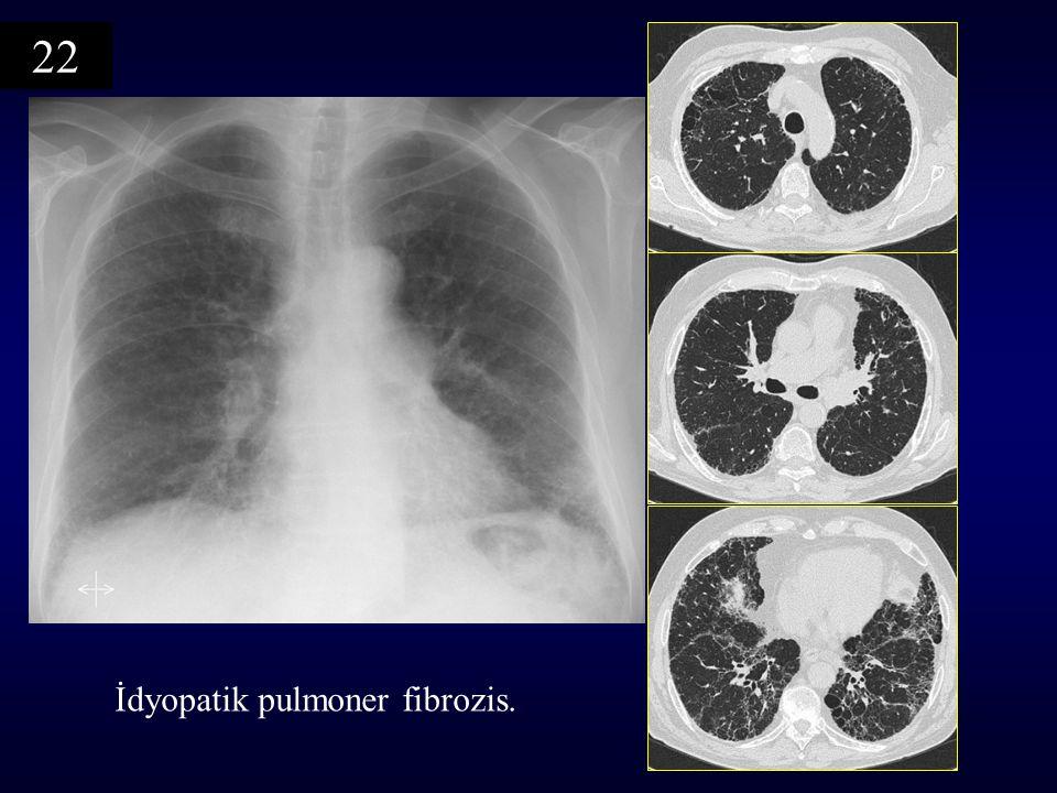 İdyopatik pulmoner fibrozis. 22