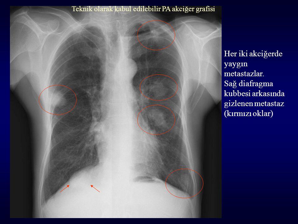 Her iki akciğerde yaygın metastazlar. Sağ diafragma kubbesi arkasında gizlenen metastaz (kırmızı oklar) Teknik olarak kabul edilebilir PA akciğer graf