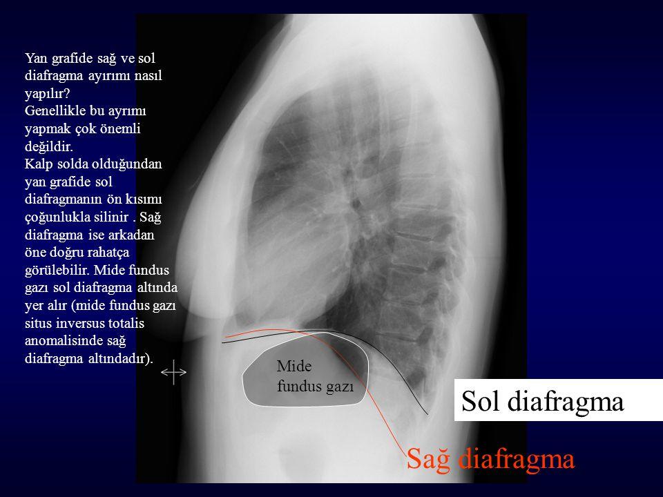Sol diafragma Sağ diafragma Mide fundus gazı Yan grafide sağ ve sol diafragma ayırımı nasıl yapılır? Genellikle bu ayrımı yapmak çok önemli değildir.