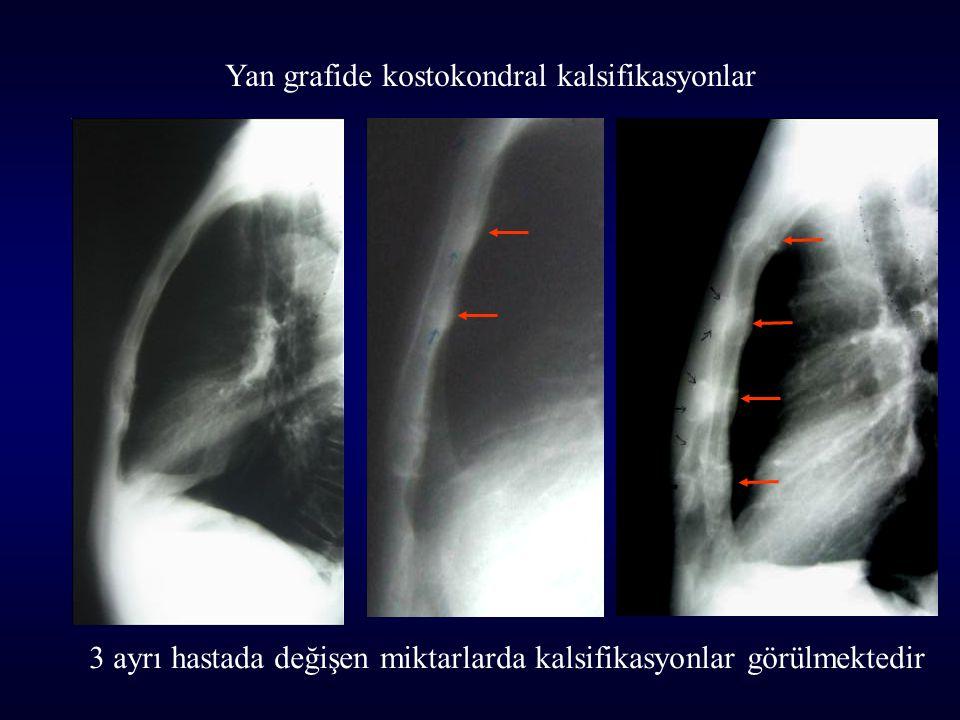 Yan grafide kostokondral kalsifikasyonlar 3 ayrı hastada değişen miktarlarda kalsifikasyonlar görülmektedir