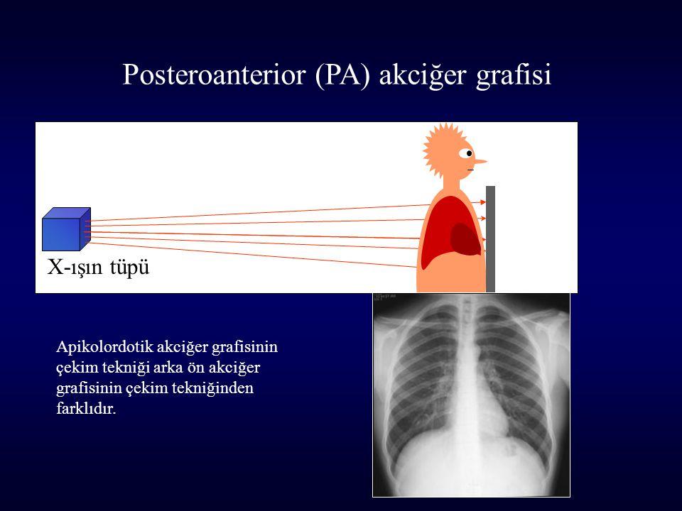 X-ışın tüpü Posteroanterior (PA) akciğer grafisi Apikolordotik akciğer grafisinin çekim tekniği arka ön akciğer grafisinin çekim tekniğinden farklıdır