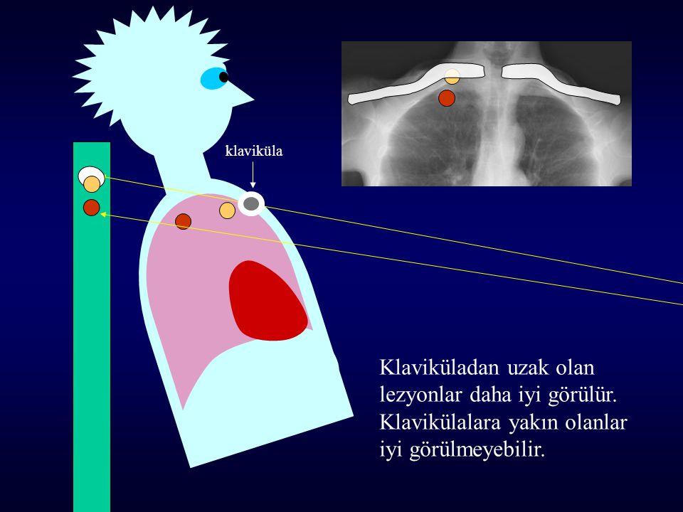Klaviküladan uzak olan lezyonlar daha iyi görülür. Klavikülalara yakın olanlar iyi görülmeyebilir. klaviküla