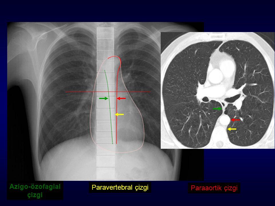 Azigo-özofagial çizgi Paraaortik çizgi Paravertebral çizgi