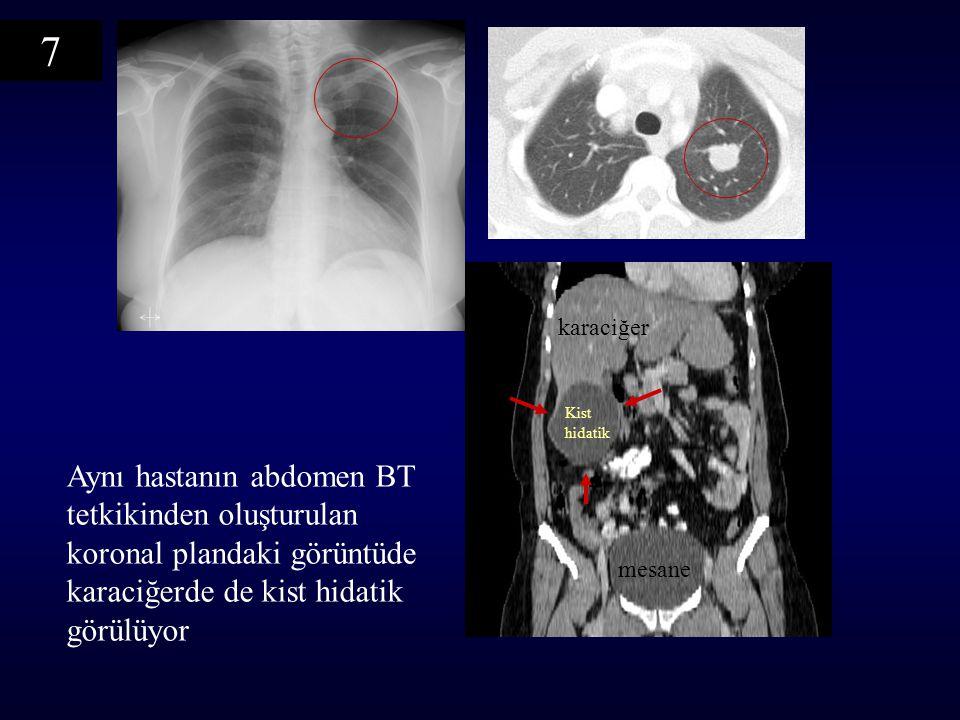 7 Aynı hastanın abdomen BT tetkikinden oluşturulan koronal plandaki görüntüde karaciğerde de kist hidatik görülüyor mesane karaciğer Kist hidatik