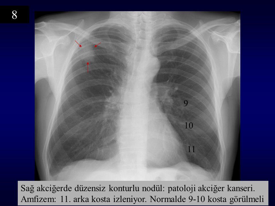 9 10 11 Sağ akciğerde düzensiz konturlu nodül: patoloji akciğer kanseri. Amfizem: 11. arka kosta izleniyor. Normalde 9-10 kosta görülmeli 8