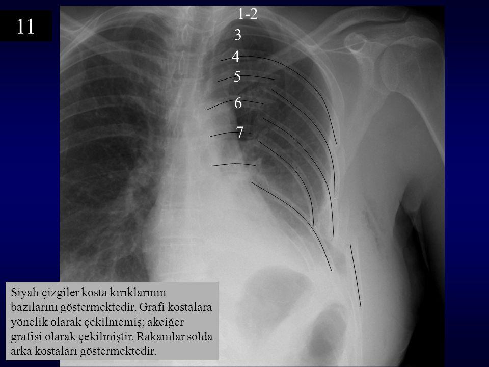 Siyah çizgiler kosta kırıklarının bazılarını göstermektedir. Grafi kostalara yönelik olarak çekilmemiş; akciğer grafisi olarak çekilmiştir. Rakamlar s
