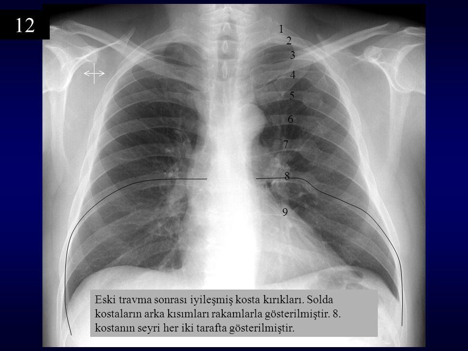 Eski travma sonrası iyileşmiş kosta kırıkları. Solda kostaların arka kısımları rakamlarla gösterilmiştir. 8. kostanın seyri her iki tarafta gösterilmi