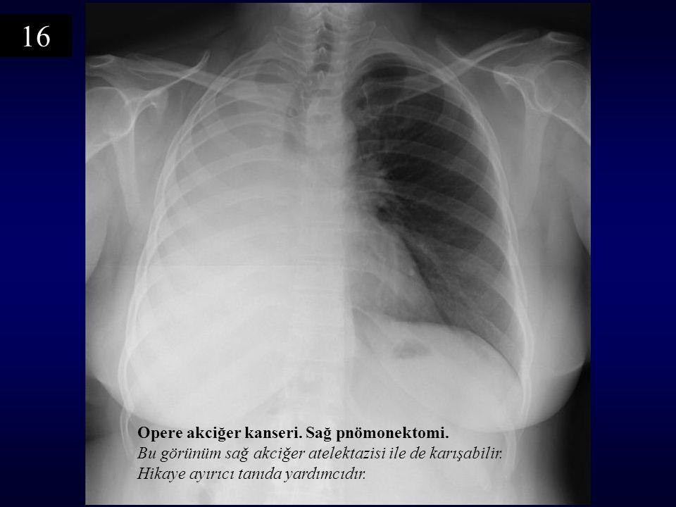 Opere akciğer kanseri. Sağ pnömonektomi. Bu görünüm sağ akciğer atelektazisi ile de karışabilir. Hikaye ayırıcı tanıda yardımcıdır. 16