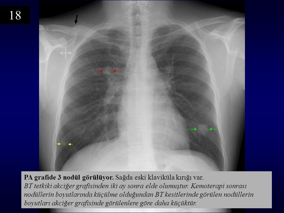 PA grafide 3 nodül görülüyor. Sağda eski klaviküla kırığı var. BT tetkiki akciğer grafisinden iki ay sonra elde olumuştur. Kemoterapi sonrası nodüller