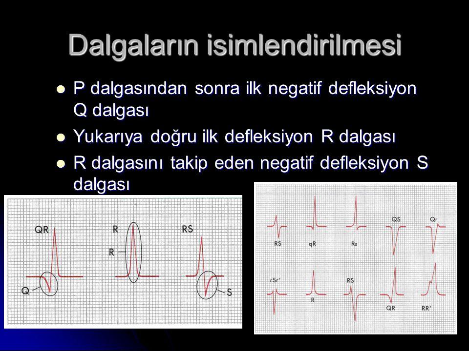 Dalgaların isimlendirilmesi  P dalgasından sonra ilk negatif defleksiyon Q dalgası  Yukarıya doğru ilk defleksiyon R dalgası  R dalgasını takip ede