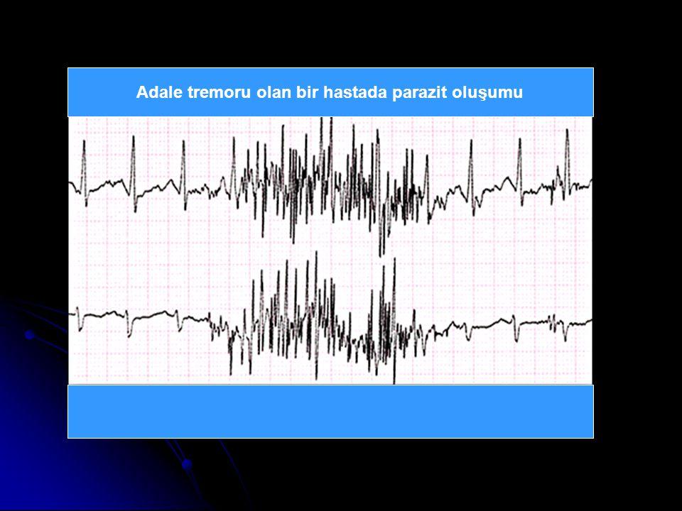 Adale tremoru olan bir hastada parazit oluşumu