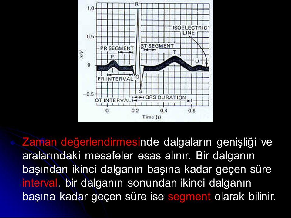Zaman değerlendirmesinde dalgaların genişliği ve aralarındaki mesafeler esas alınır. Bir dalganın başından ikinci dalganın başına kadar geçen süre int
