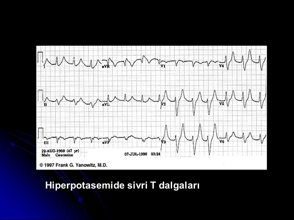 Hiperpotasemide sivri T dalgaları