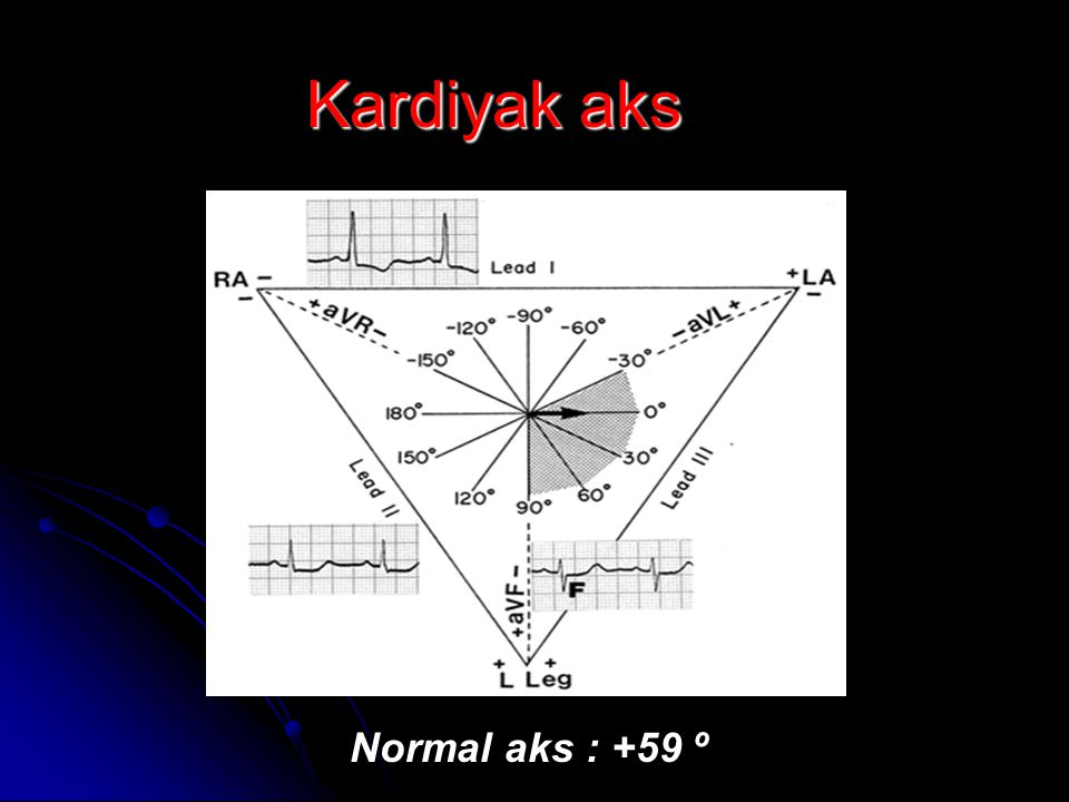 Normal aks : +59 º Kardiyak aks
