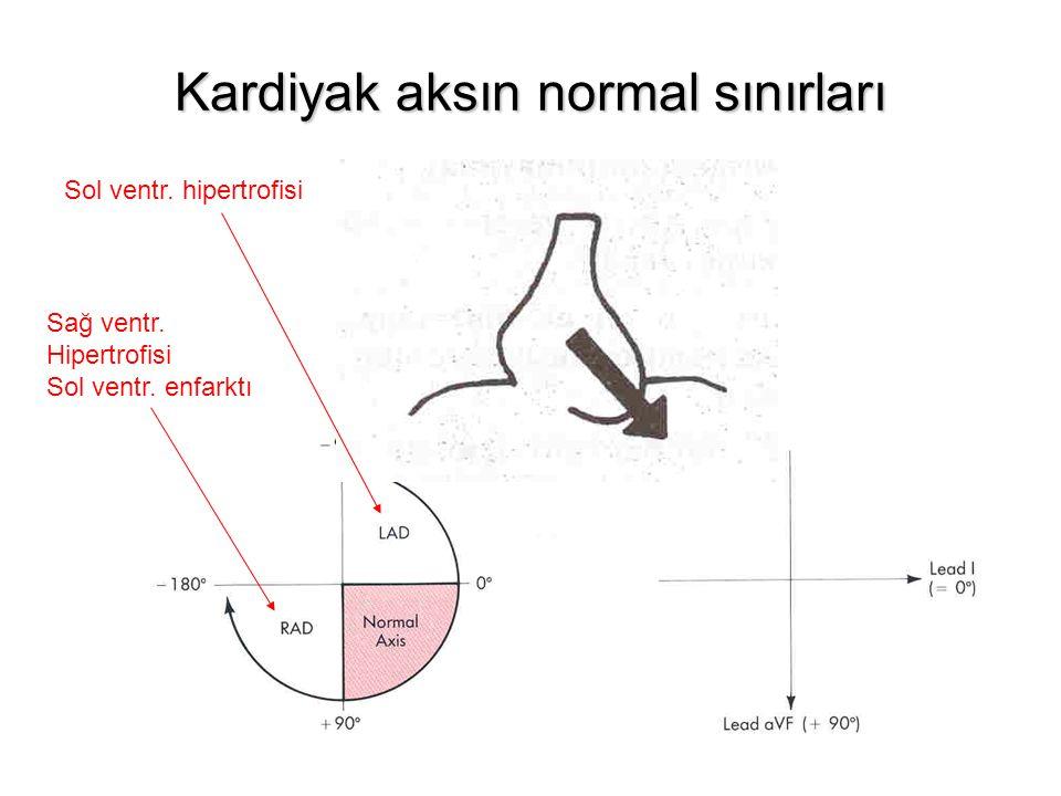 Kardiyak aksın normal sınırları Sol ventr. hipertrofisi Sağ ventr. Hipertrofisi Sol ventr. enfarktı
