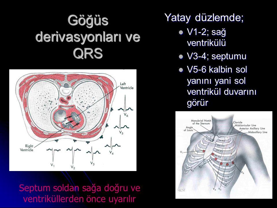 Göğüs derivasyonları ve QRS Yatay düzlemde;  V1-2; sağ ventrikülü  V3-4; septumu  V5-6 kalbin sol yanını yani sol ventrikül duvarını görür Septum s