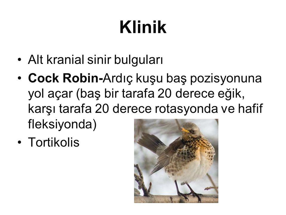 Klinik •Alt kranial sinir bulguları •Cock Robin-Ardıç kuşu baş pozisyonuna yol açar (baş bir tarafa 20 derece eğik, karşı tarafa 20 derece rotasyonda ve hafif fleksiyonda) •Tortikolis