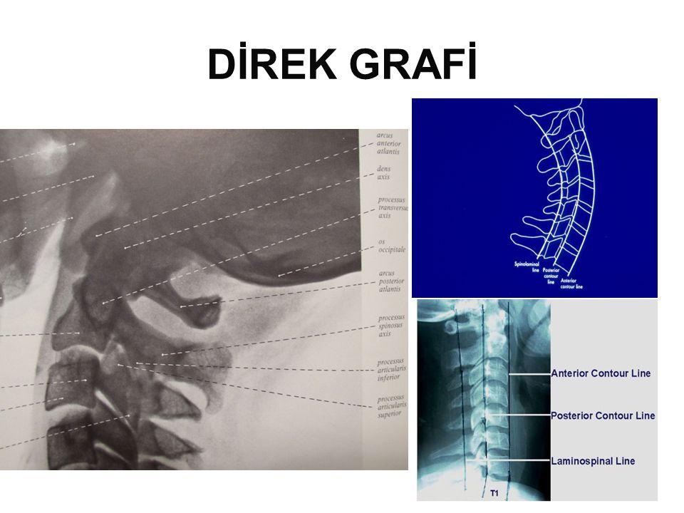 DİREK GRAFİ