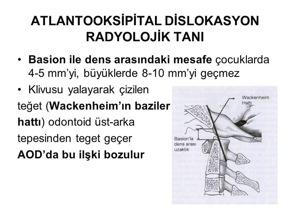 ATLANTOOKSİPİTAL DİSLOKASYON RADYOLOJİK TANI •Basion ile dens arasındaki mesafe çocuklarda 4-5 mm'yi, büyüklerde 8-10 mm'yi geçmez •Klivusu yalayarak çizilen teğet (Wackenheim'ın baziler hattı) odontoid üst-arka tepesinden teget geçer AOD'da bu ilşki bozulur