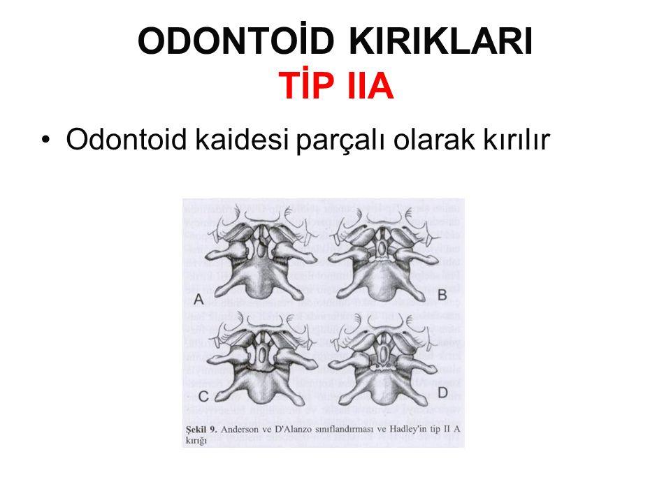 ODONTOİD KIRIKLARI TİP IIA •Odontoid kaidesi parçalı olarak kırılır