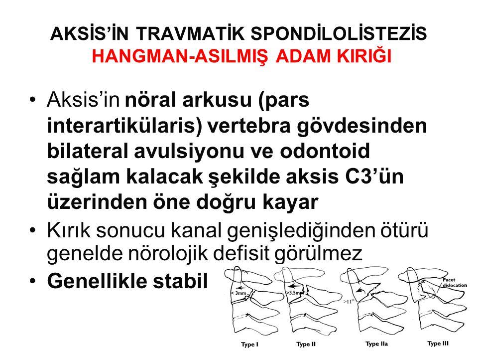 AKSİS'İN TRAVMATİK SPONDİLOLİSTEZİS HANGMAN-ASILMIŞ ADAM KIRIĞI •Aksis'in nöral arkusu (pars interartikülaris) vertebra gövdesinden bilateral avulsiyonu ve odontoid sağlam kalacak şekilde aksis C3'ün üzerinden öne doğru kayar •Kırık sonucu kanal genişlediğinden ötürü genelde nörolojik defisit görülmez •Genellikle stabil