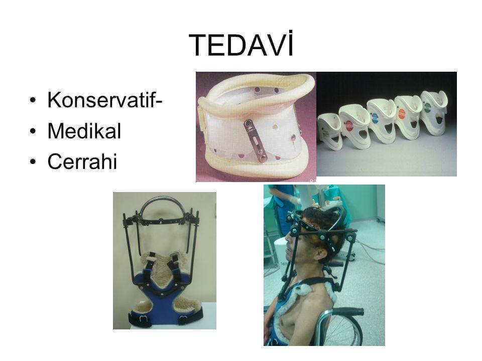 TEDAVİ •Konservatif- •Medikal •Cerrahi