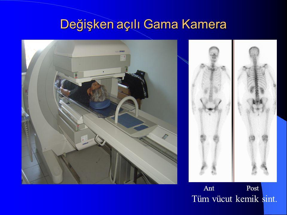 Değişken açılı Gama Kamera Ant Post Tüm vücut kemik sint.