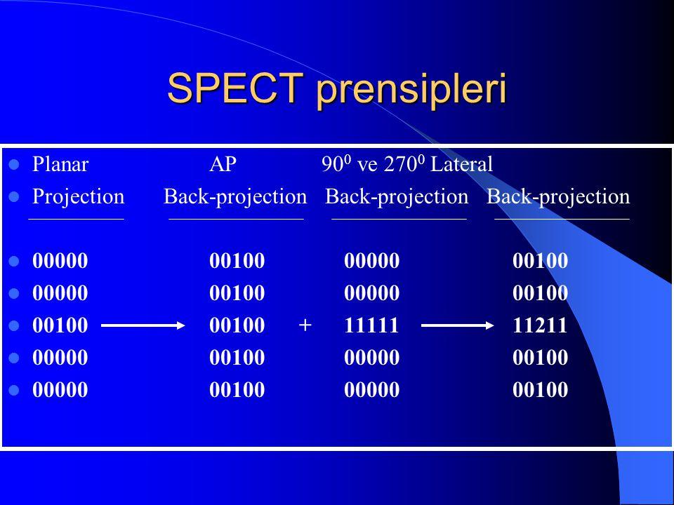  Planar AP 90 0 ve 270 0 Lateral  Projection Back-projection Back-projection Back-projection  000000010000000 00100  0010000100 +11111 11211  000