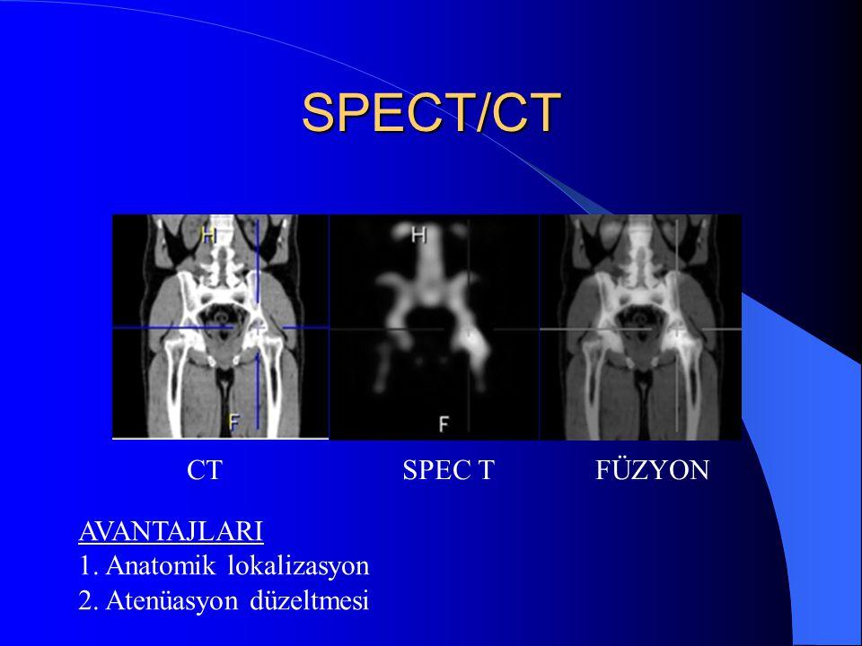 SPECT/CT CT SPEC T FÜZYON AVANTAJLARI 1. Anatomik lokalizasyon 2. Atenüasyon düzeltmesi