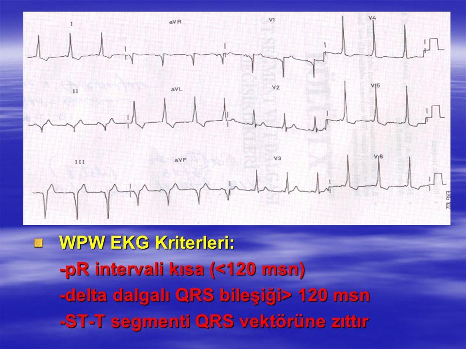 WPW EKG Kriterleri: -pR intervali kısa (<120 msn) -delta dalgalı QRS bileşiği> 120 msn -ST-T segmenti QRS vektörüne zıttır ATRİYAL TAŞİKARDİLER : AVRT