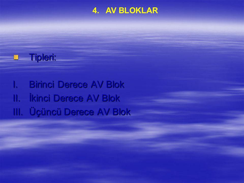 Tipleri: I.Birinci Derece AV Blok II.İkinci Derece AV Blok III.Üçüncü Derece AV Blok 4. AV BLOKLAR