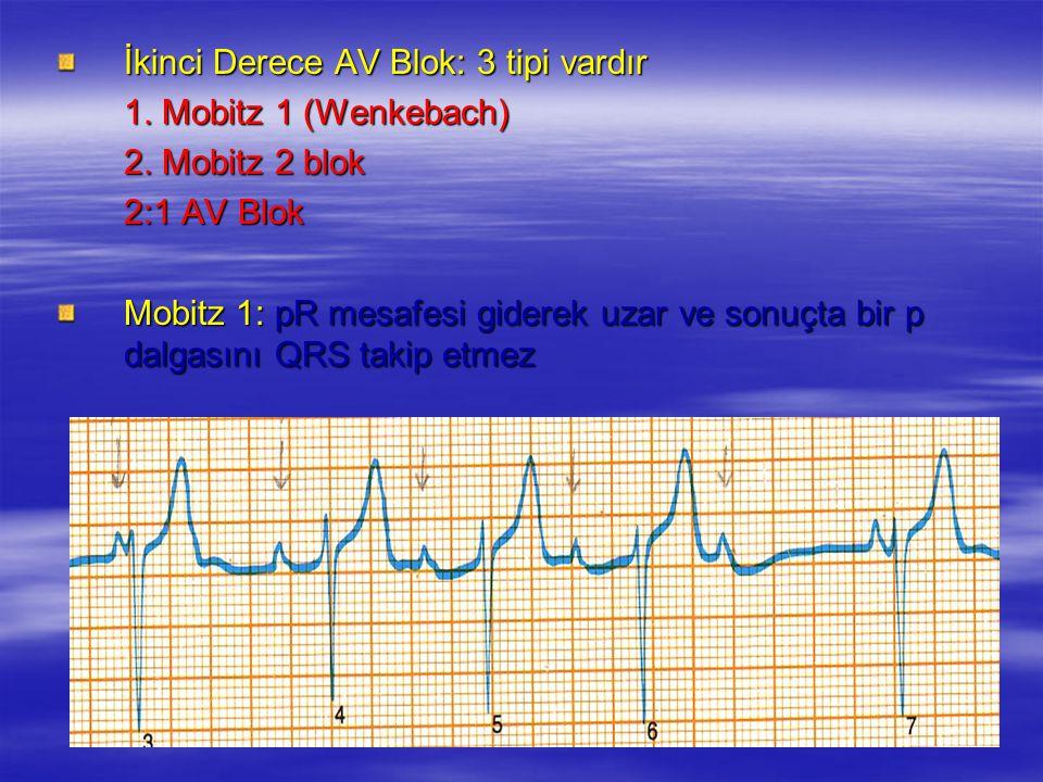 İkinci Derece AV Blok: 3 tipi vardır 1. Mobitz 1 (Wenkebach) 2. Mobitz 2 blok 2:1 AV Blok Mobitz 1: pR mesafesi giderek uzar ve sonuçta bir p dalgasın