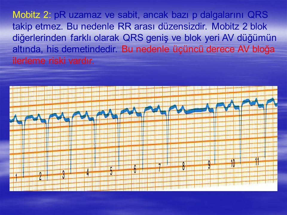 Mobitz 2: pR uzamaz ve sabit, ancak bazı p dalgalarını QRS takip etmez. Bu nedenle RR arası düzensizdir. Mobitz 2 blok diğerlerinden farklı olarak QRS