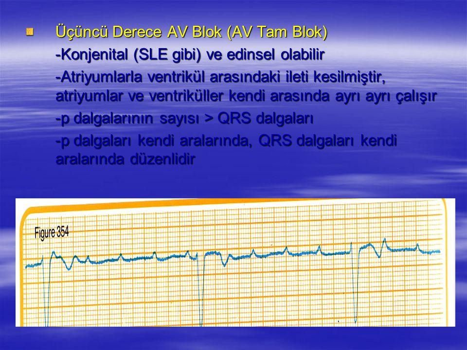 Üçüncü Derece AV Blok (AV Tam Blok) -Konjenital (SLE gibi) ve edinsel olabilir -Atriyumlarla ventrikül arasındaki ileti kesilmiştir, atriyumlar ve ven