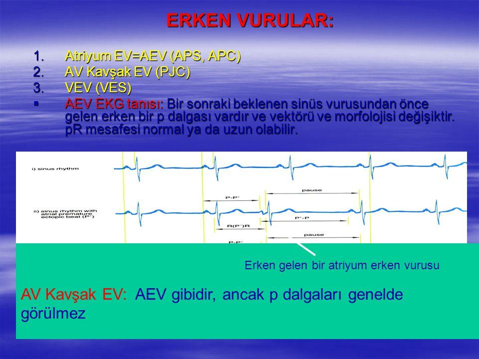 1.Atriyum EV=AEV (APS, APC) 2.AV Kavşak EV (PJC) 3.VEV (VES)  AEV EKG tanısı: Bir sonraki beklenen sinüs vurusundan önce gelen erken bir p dalgası va