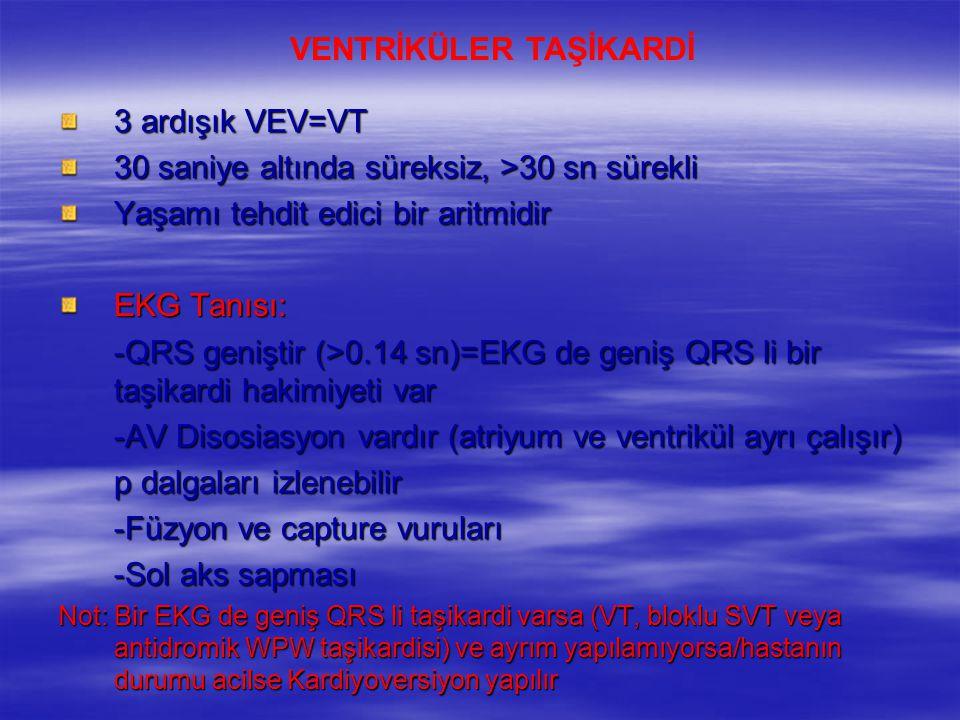 3 ardışık VEV=VT 30 saniye altında süreksiz, >30 sn sürekli Yaşamı tehdit edici bir aritmidir EKG Tanısı: -QRS geniştir (>0.14 sn)=EKG de geniş QRS li