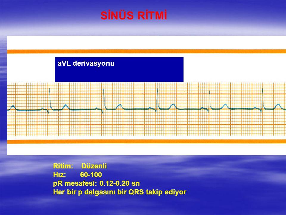 SİNÜS RİTMİ Ritim: Düzenli Hız: 60-100 pR mesafesi: 0.12-0.20 sn Her bir p dalgasını bir QRS takip ediyor aVL derivasyonu