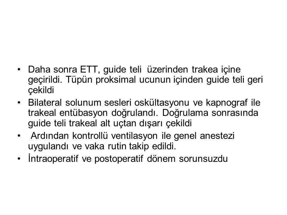 •Daha sonra ETT, guide teli üzerinden trakea içine geçirildi.