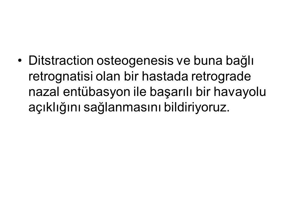 •Ditstraction osteogenesis ve buna bağlı retrognatisi olan bir hastada retrograde nazal entübasyon ile başarılı bir havayolu açıklığını sağlanmasını bildiriyoruz.