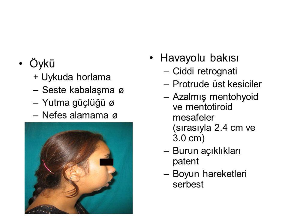 •Öykü + Uykuda horlama –Seste kabalaşma ø –Yutma güçlüğü ø –Nefes alamama ø •Havayolu bakısı –Ciddi retrognati –Protrude üst kesiciler –Azalmış mentohyoid ve mentotiroid mesafeler (sırasıyla 2.4 cm ve 3.0 cm) –Burun açıklıkları patent –Boyun hareketleri serbest