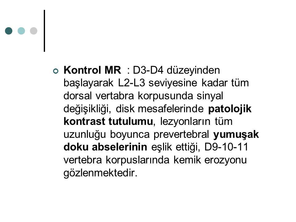 Kontrol MR : D3-D4 düzeyinden başlayarak L2-L3 seviyesine kadar tüm dorsal vertabra korpusunda sinyal değişikliği, disk mesafelerinde patolojik kontra